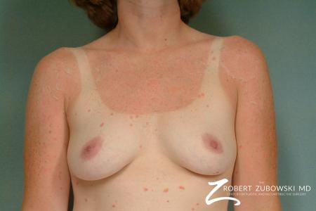 Breast Augmentation: Patient 28 - Before Image