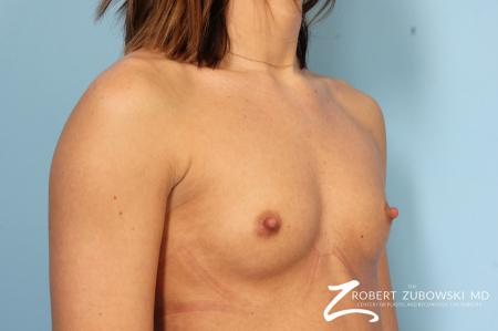 Breast Augmentation: Patient 37 - Before Image 2
