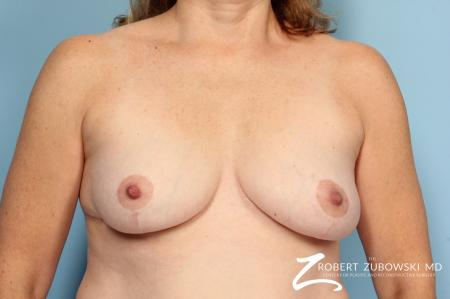 Breast Lift: Patient 11 - After Image 1