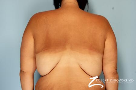 Body Lift: Patient 6 - Before Image