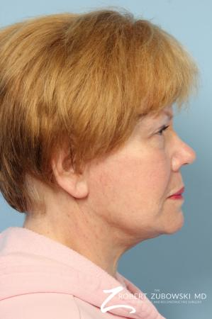 Facelift: Patient 26 - After Image 2
