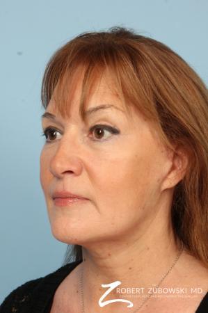 Blepharoplasty: Patient 15 - After Image 2