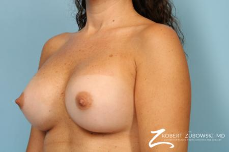 Breast Augmentation: Patient 40 - After Image 4