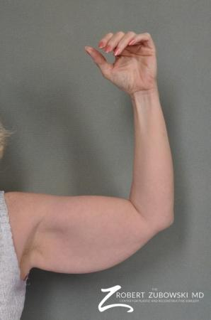 Arm Lift: Patient 1 - Before Image 1
