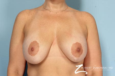Breast Lift And Augmentation: Patient 19 - Before Image 1