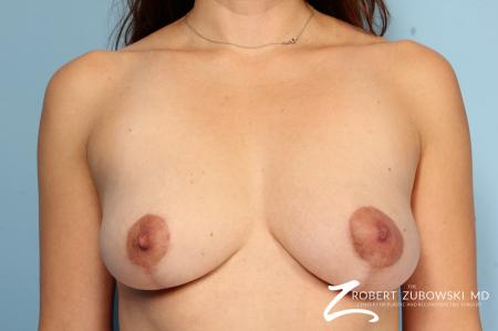 Breast Lift: Patient 12 - After Image