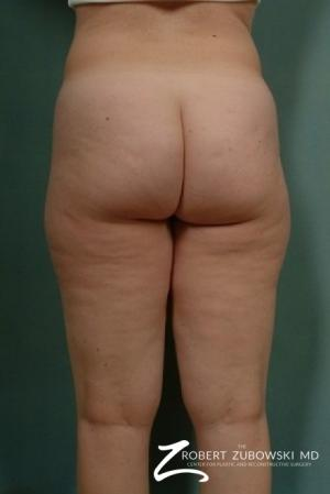 Liposuction: Patient 4 - Before and After Image 2