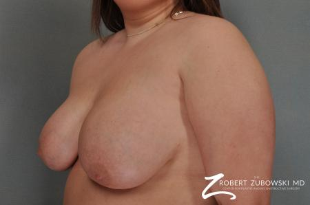 Breast Lift: Patient 13 - Before and After Image 2