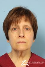 Blepharoplasty: Patient 14 - Before Image