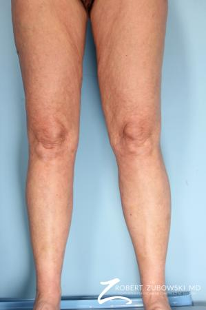 Liposuction: Patient 46 - After Image 2