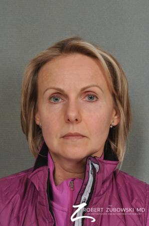 BOTOX® Cosmetic: Patient 2 - Before Image 1
