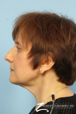Neck Lift: Patient 1 - After Image 3
