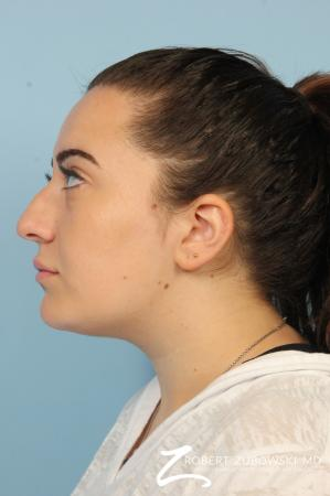 Rhinoplasty: Patient 21 - Before Image 2