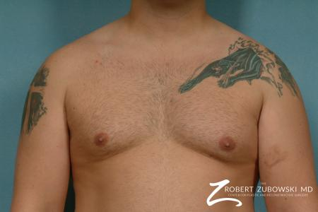 Gynecomastia: Patient 9 - Before Image 1