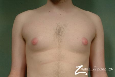 Gynecomastia: Patient 4 - Before Image