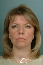 Blepharoplasty: Patient 7 - Before Image