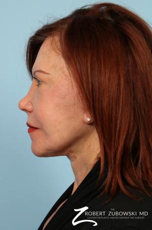 Facelift: Patient 29 - After Image 2
