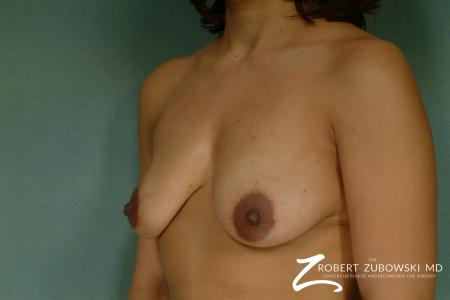 Breast Lift And Augmentation: Patient 13 - Before and After Image 2