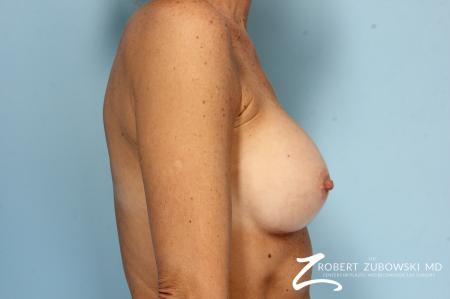 Breast Augmentation: Patient 39 - After Image 3