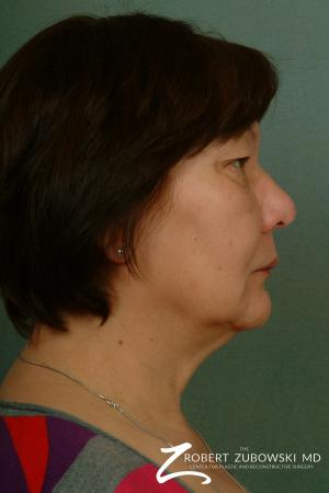 Blepharoplasty: Patient 23 - Before and After Image 2