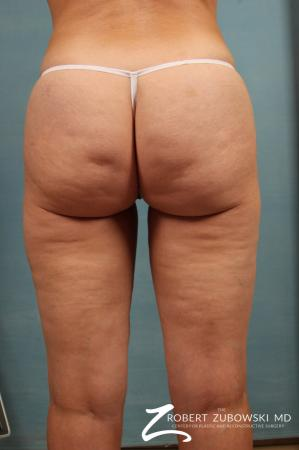 Cellulaze: Patient 1 - Before Image 2