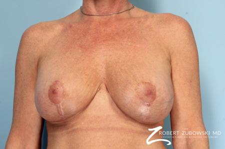 Breast Lift And Augmentation: Patient 17 - After Image 1