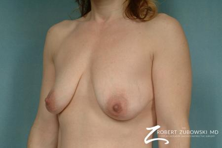Breast Lift And Augmentation: Patient 14 - Before and After Image 2