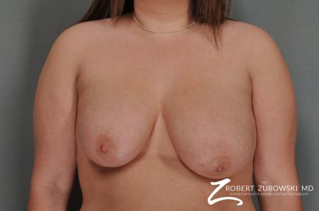 Breast Lift: Patient 13 - Before Image