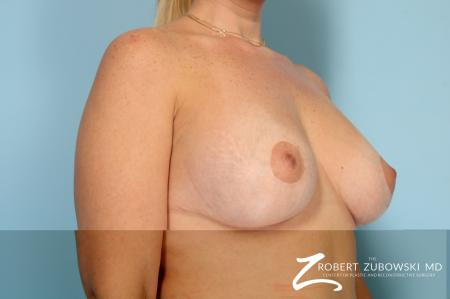 Breast Lift And Augmentation: Patient 19 - After Image 2