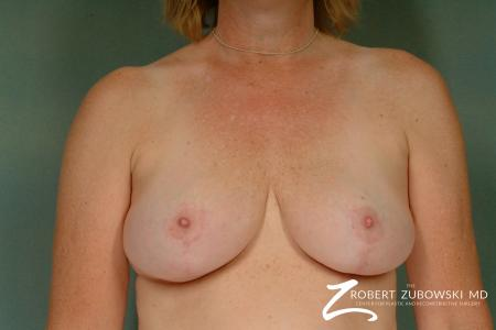Breast Reduction: Patient 23 - After Image