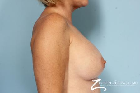Breast Augmentation: Patient 38 - After Image 2
