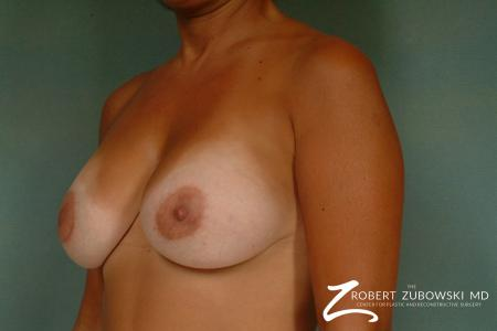 Breast Lift And Augmentation: Patient 16 - After Image 2
