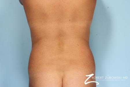 Liposuction: Patient 45 - Before Image