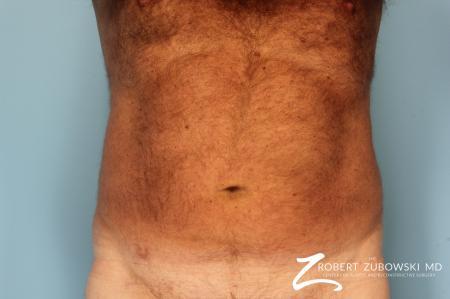 Liposuction: Patient 18 - Before Image