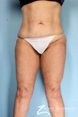 Thigh Lift: Patient 2 - After Image