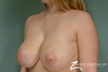 Breast Reduction: Patient 4 - Before and After Image 2