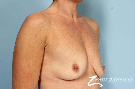 Breast Augmentation: Patient 38 - Before and After Image 3