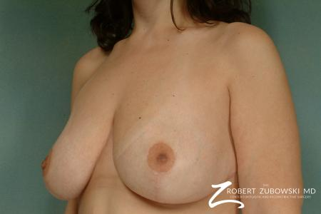 Breast Lift: Patient 8 - After Image 2