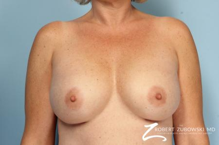 Breast Augmentation: Patient 38 - After Image 1