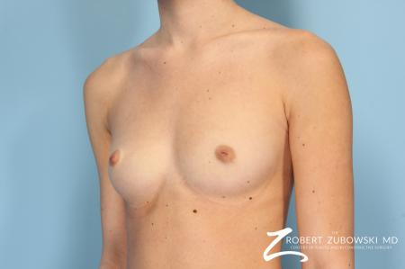 Breast Augmentation: Patient 8 - Before and After Image 2