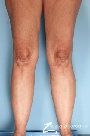 Liposuction: Patient 46 - Before and After Image 2