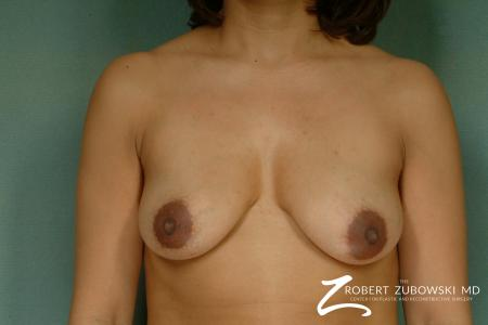 Breast Lift And Augmentation: Patient 13 - Before Image 1