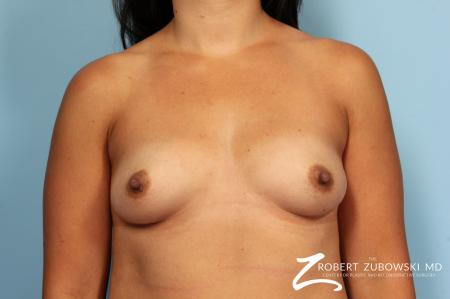 Breast Augmentation: Patient 35 - Before Image 1