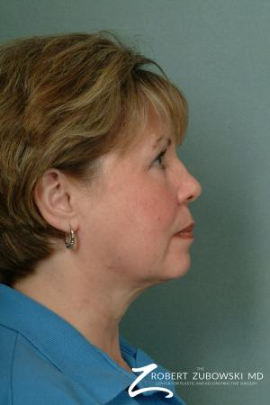 Chin Augmentation: Patient 2 - Before and After Image 2