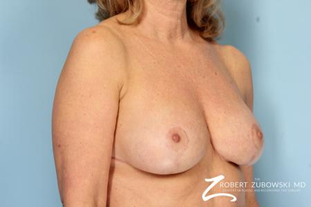 Breast Reduction: Patient 24 - After Image 2