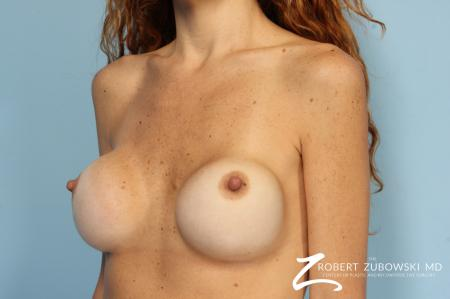 Breast Revision: Patient 1 - Before and After Image 2