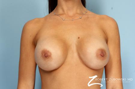 Breast Augmentation: Patient 36 - After Image 1