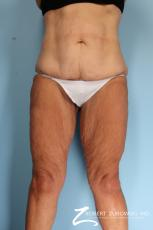 Thigh Lift: Patient 2 - Before Image