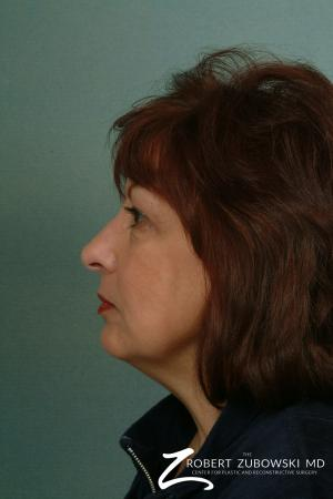 Facelift: Patient 2 - Before and After Image 2