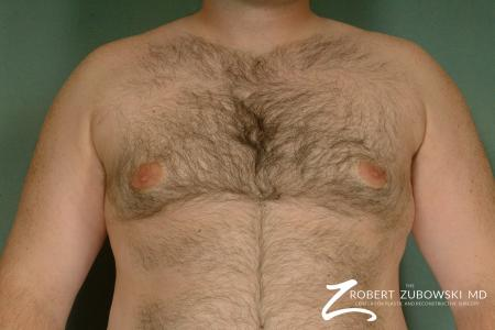 Gynecomastia: Patient 7 - After Image 1